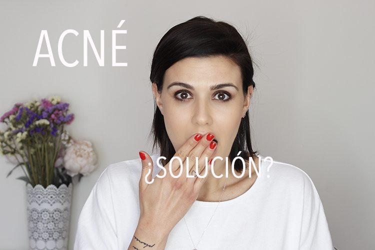 ACNÉ: origen, tips, maquillaje